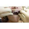 Лучшая круглосуточная стоматология Денталхом24